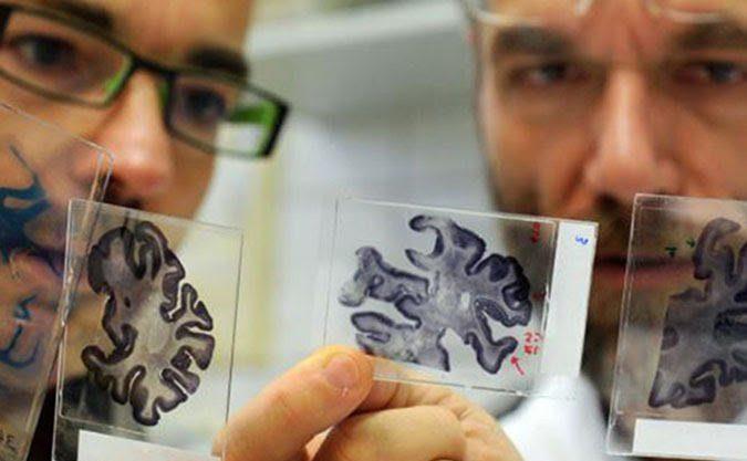 Причиной развития болезни Альцгеймера может служить депрессия